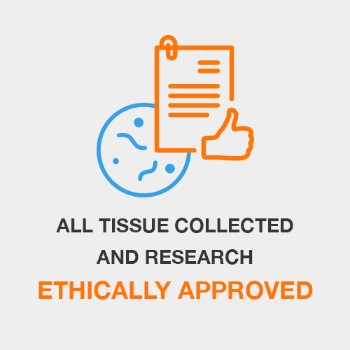 All Tissue Collected and Research Ethically Approved